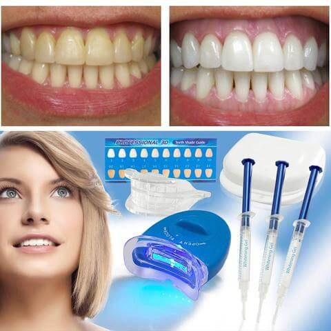 Tooth Whitening with LED Blue Light