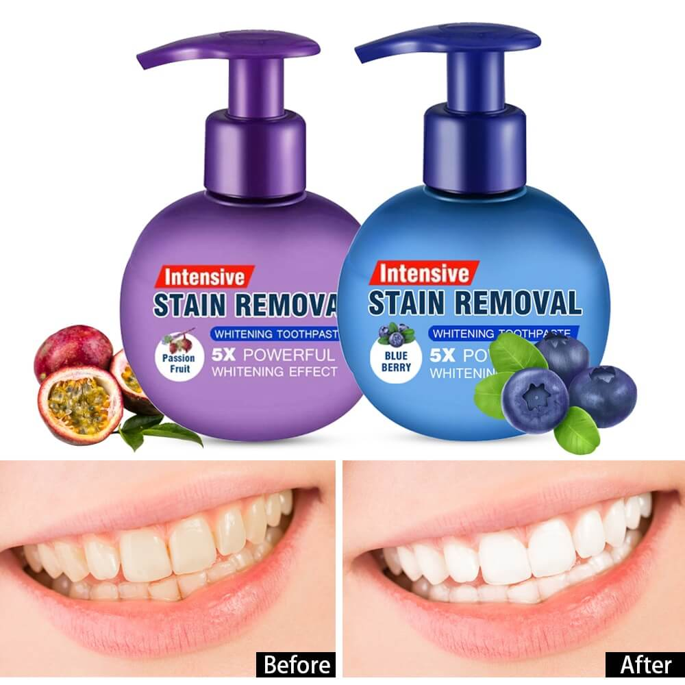 What Is The Best Teeth Whitening Toothpaste