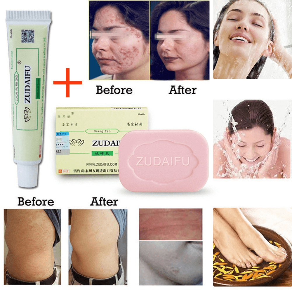 Where To Buy Sulfur Soap For Psoriasis
