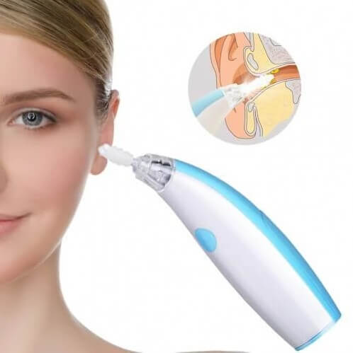 Professional Ear Wax Removal Tools