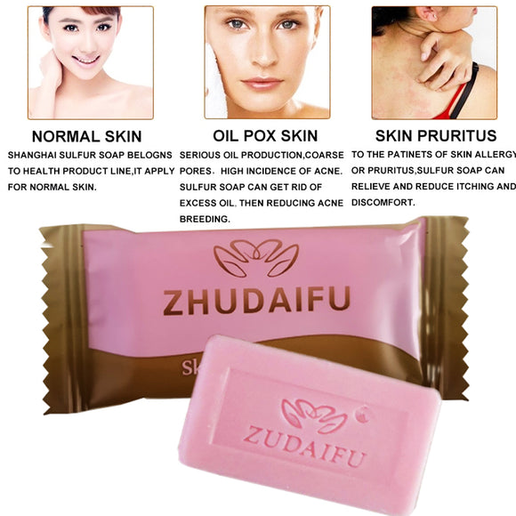 85g Sulphur Soap Skin Care Dermatitis Fungus Eczema Anti Bacteria Fungus Shower Bath Whitening Soaps Household Face Washing Soap Beauty & Health Cleansers