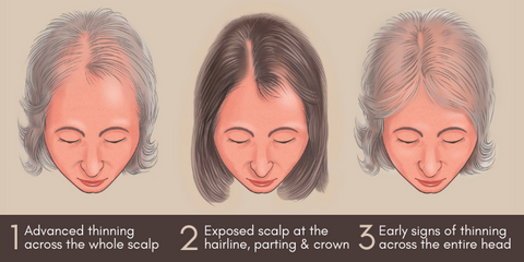 Hairfix Follicle Treatments for mild to extreme hair loss and thinning
