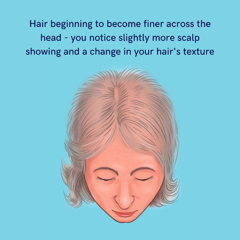 hair thinning treatments for women