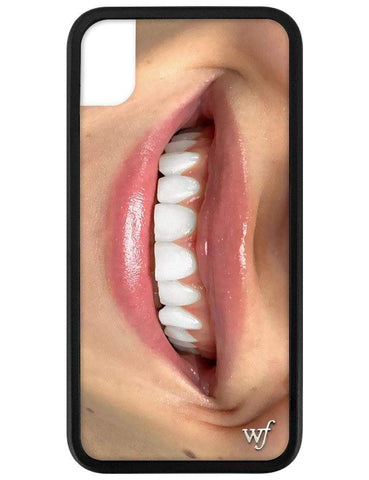Devon Carlson Smile iPhone Xr Case