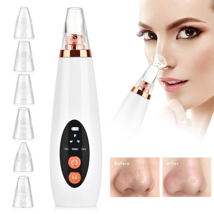 Blackhead Removal Vacuum Deep Pore Cleaner - WINK EYELASH BAR & MAKEUP STUDIO