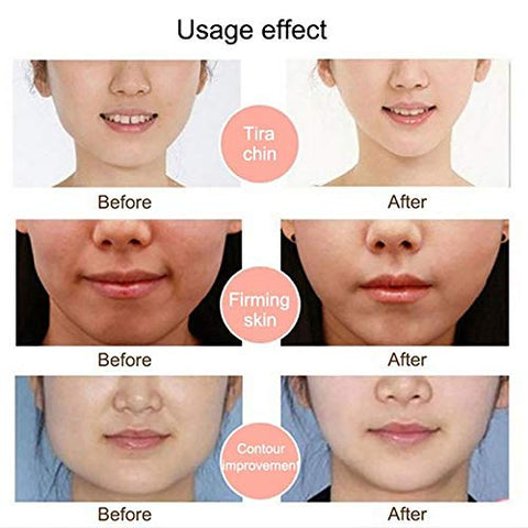 Face Slimming Bandage,Facial Slimming Strap,Graphene Face Slimming Bandage Reduce Double Chin Thin Face Anti Wrinkle Facial Massager Face-Lift Belt