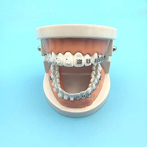 TDOU Dental 1:1 Demonstration Orthodontic Treatment Teeth Model - For Patient Communication Teach Study Tools -Explaining Models with Braces (Metal braces)