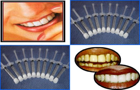 Teeth Whitening Kit 35% with 10 syringes of gel= 10-3cc 35% syringes and 2- Trays