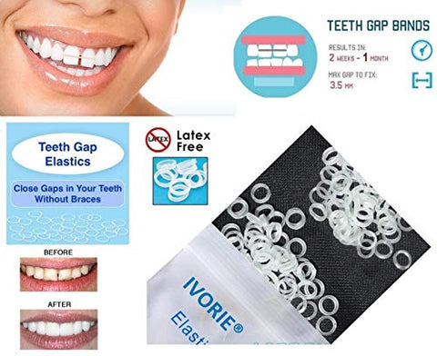 IVORIE Teeth Gap Bands Orthodontic Bands Clear Dental Elastic Bands 100/Pk (1/8
