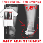 This is Your Leg on Rugby T-shirt