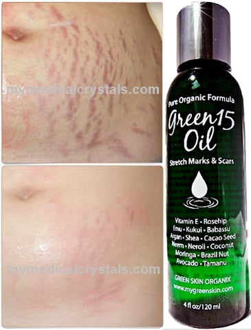 GREEN15 Oil for fresh Stretch Marks & Scars