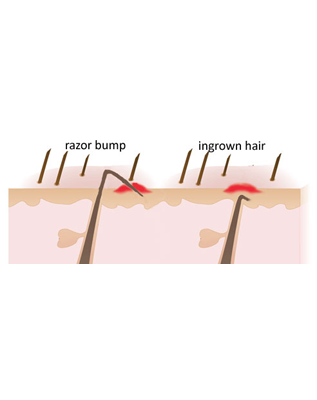 Treat Razor Bumps