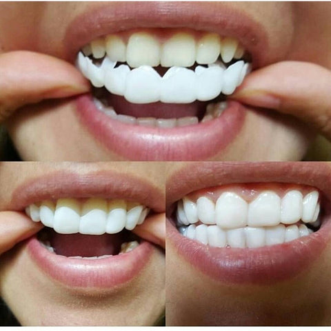 snap on smile veneers walmart