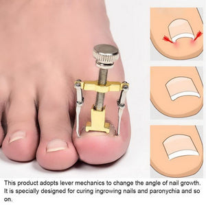 Ingrown Toe Nail Correction Tool  Paronychia Nail Brace Tools