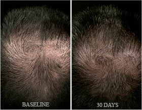 Before & After Hair Regrowth