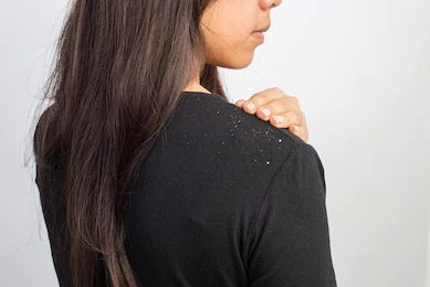 Winter Dandruff? Here's how to approach your battle against itchy, dry and dandruff prone scalp