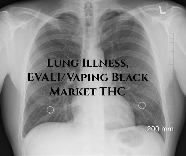 Lung Illness, EVALI/Vaping Black Market THC