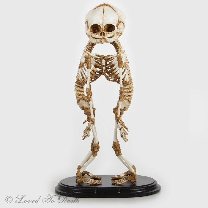 """A"" Baby Fetal Skeleton Cast On Base"