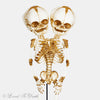 "Conjoined Fetal ""Y"" Baby Skeleton Cast"