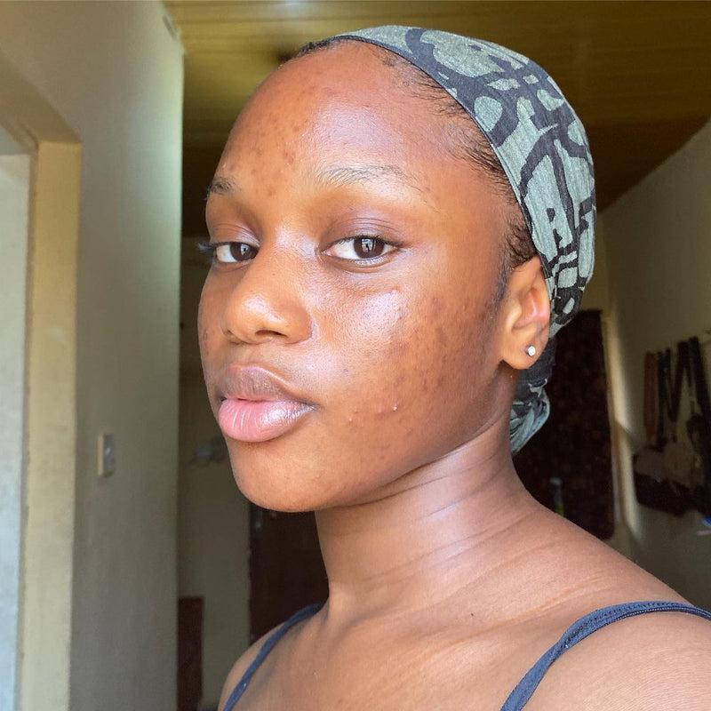 Brown-skinned girl with hyperpigmentation