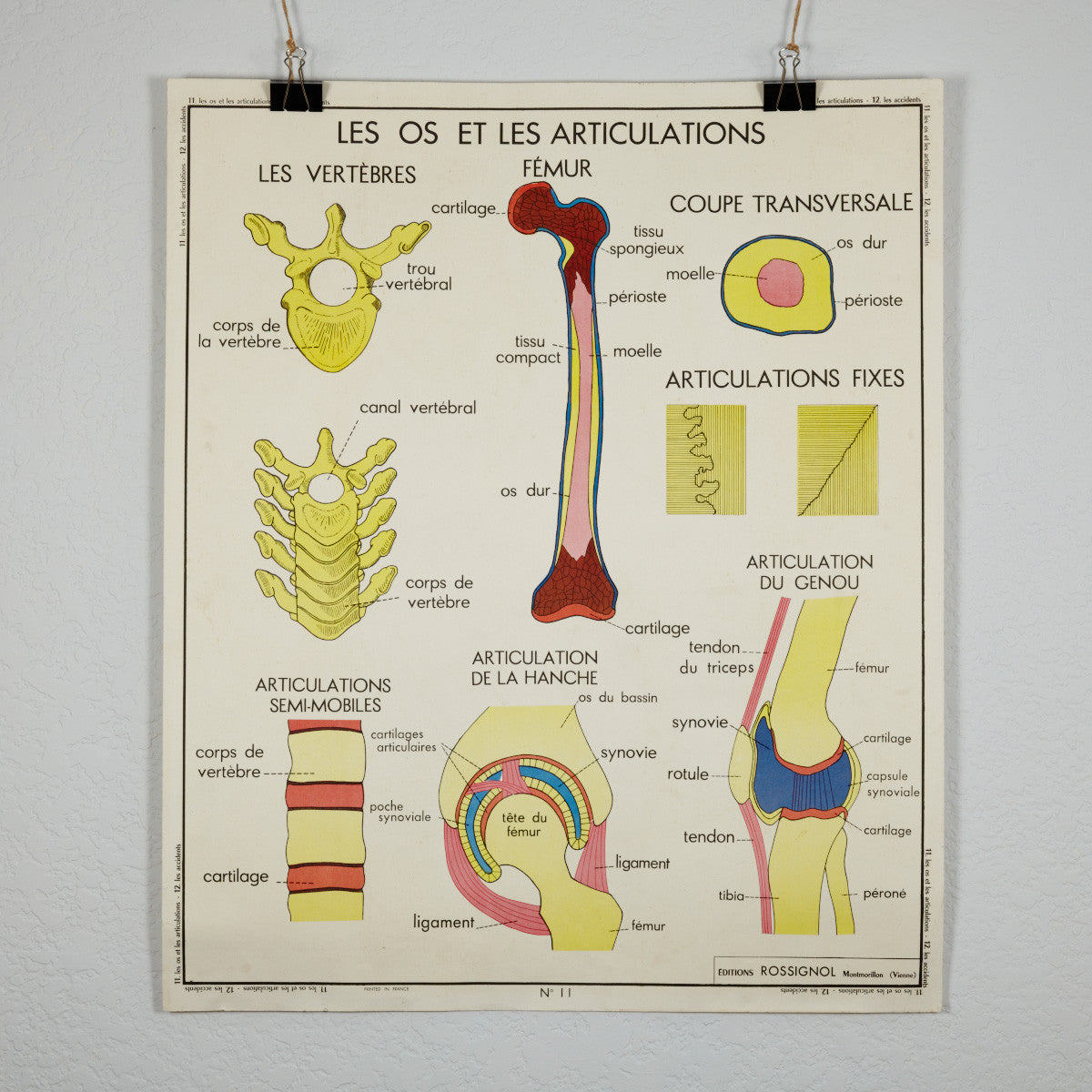 Vintage French School Science Poster- Joints and Fractures