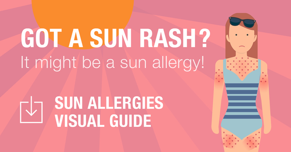 Sun rash sun allergy visual guide
