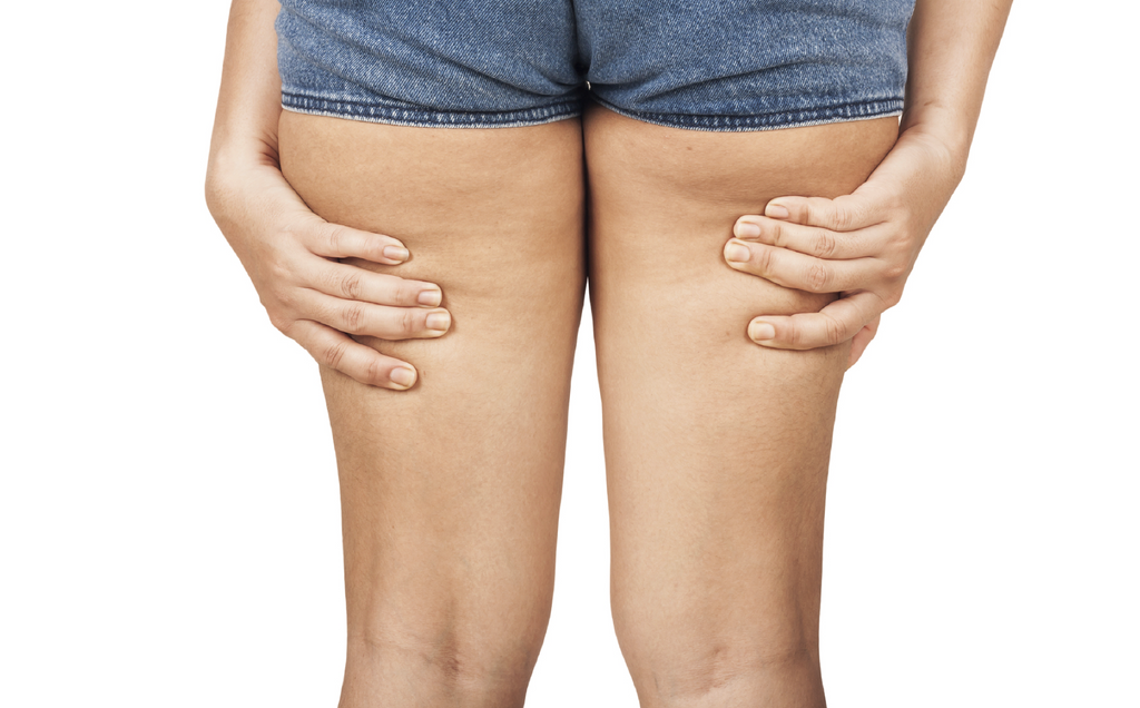 Expert Advice on Dealing with Cellulite