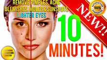 Load image into Gallery viewer, REMOVE DARK SPOTS, BLEMISHES, ACNE, MOLES & GET LIGHTER EYES IN 10 MINUTES! SUBLIMINAL AFFIRMATIONS