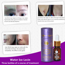 Load image into Gallery viewer, Stretch Mark Removal Essential Oil