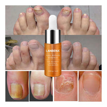 Load image into Gallery viewer, Nail Repair Essence Serum
