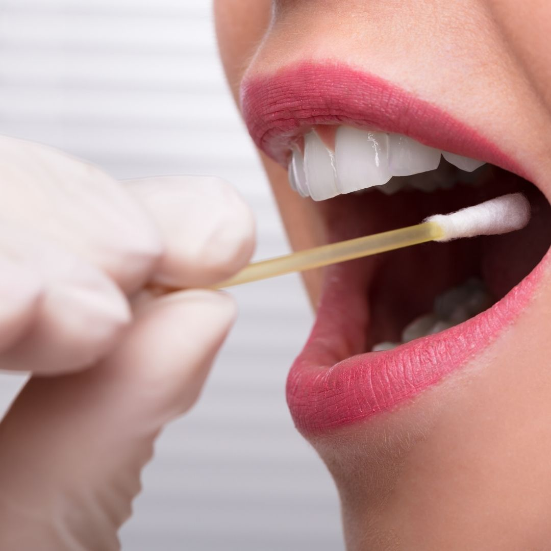 Mouth Swab Drug Test 101: How to Pass a Saliva Test?