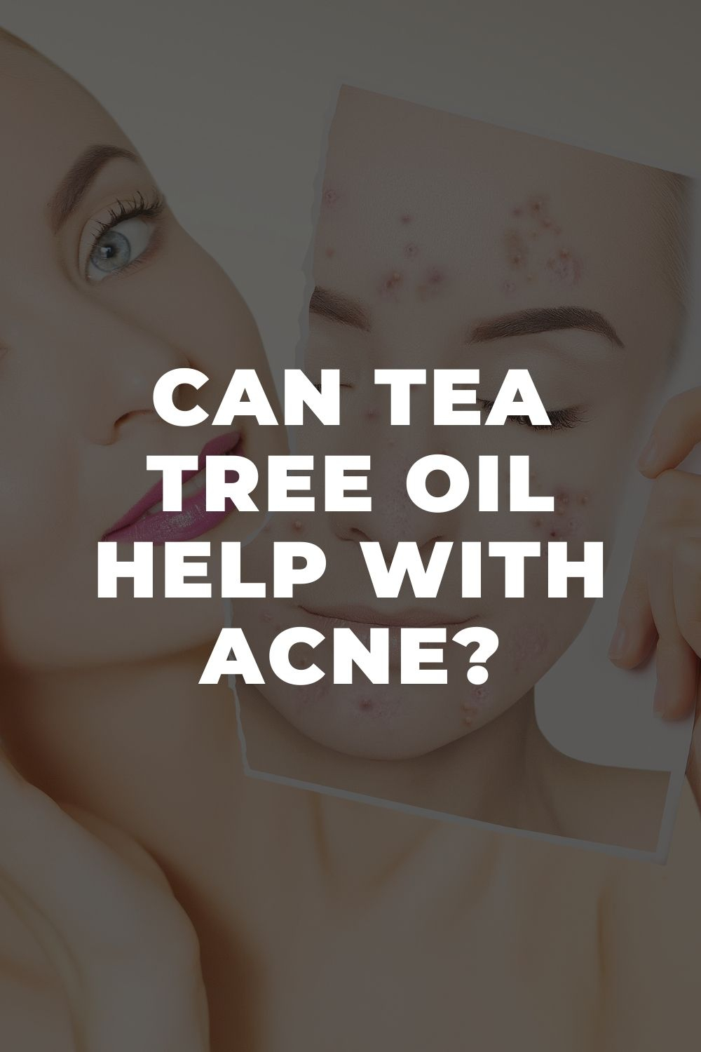 Can Tea Tree Oil Help with Acne?