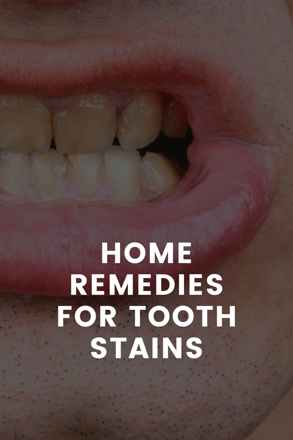 Home Remedies For Tooth Stains