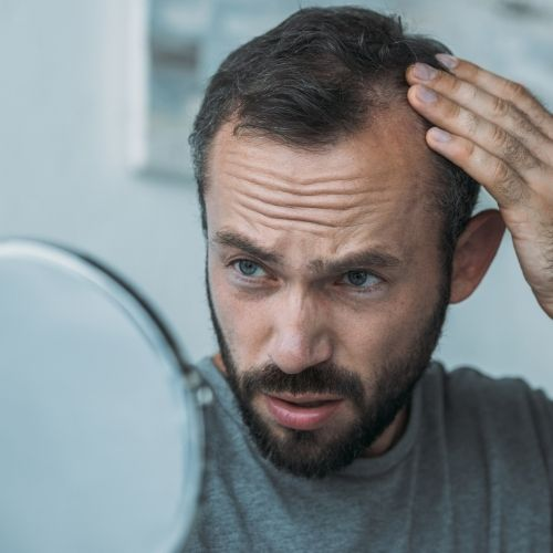 Reasons For Hair Loss in Men