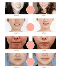 Load image into Gallery viewer, V-Shaped Face Slimming Mask