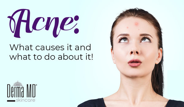 Acne: What causes it and what to do about it! | Derma MD Canada