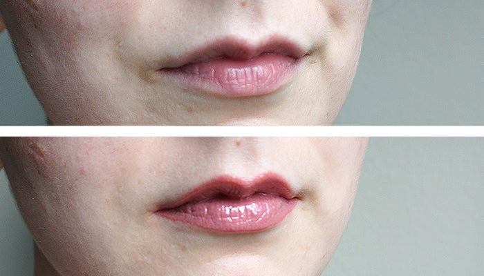 Glamur Lip Plump Before/After