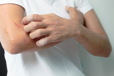 Coping with Eczema & Psoriasis | Derma MD Canada