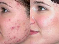 dead sea mud mask acne treatment before and after