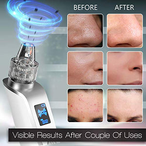 Olrom Blackhead Remover – Electric Vacuum Suction Blackhead Remover w/LED Display