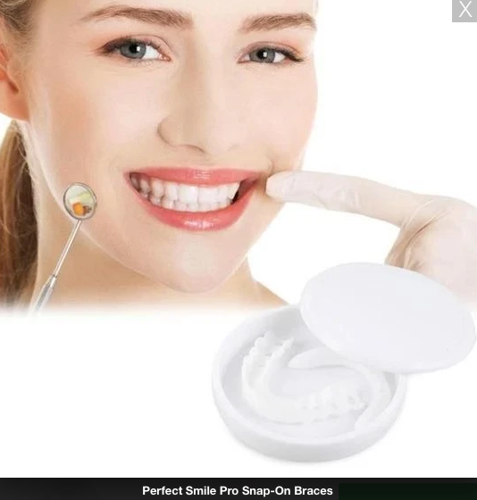 Perfect Smile Pro Snap-On Braces