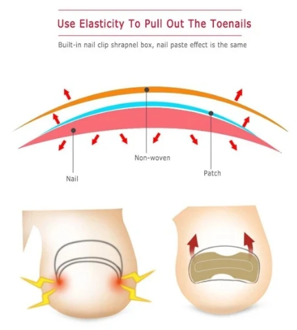 Painless Toenail Patch