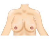 Narrow base wide breasts | FinallyBra