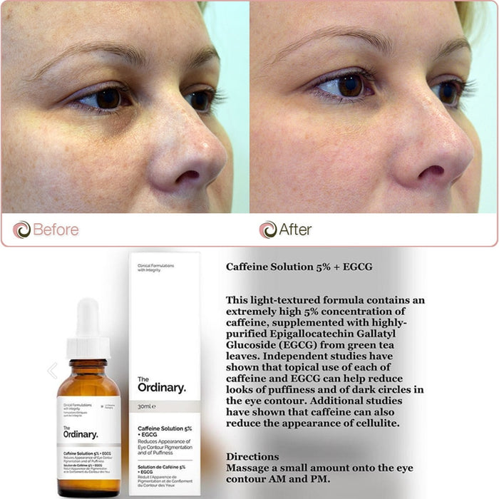 The Ordinary 5 Caffenie Egcg Eye Serum Eliminate Best Eye Cream