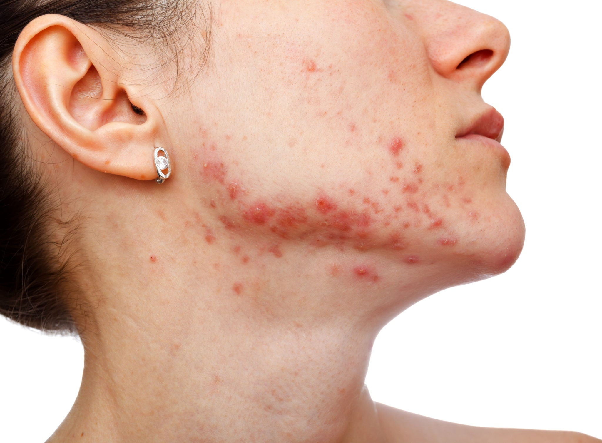 Does PCOS cause acne?