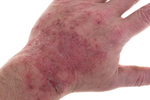 What is the difference between eczema and psoriasis?