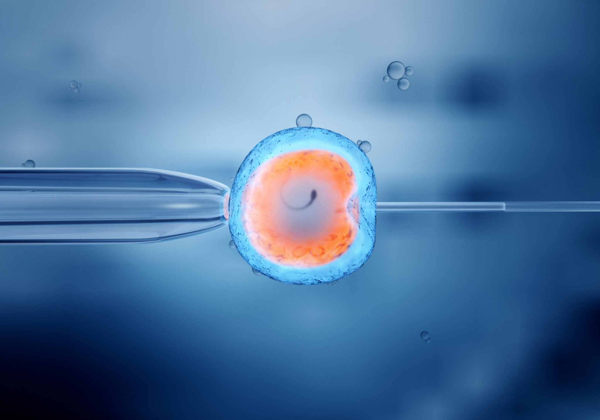 IVF: is it a fast track to pregnancy?