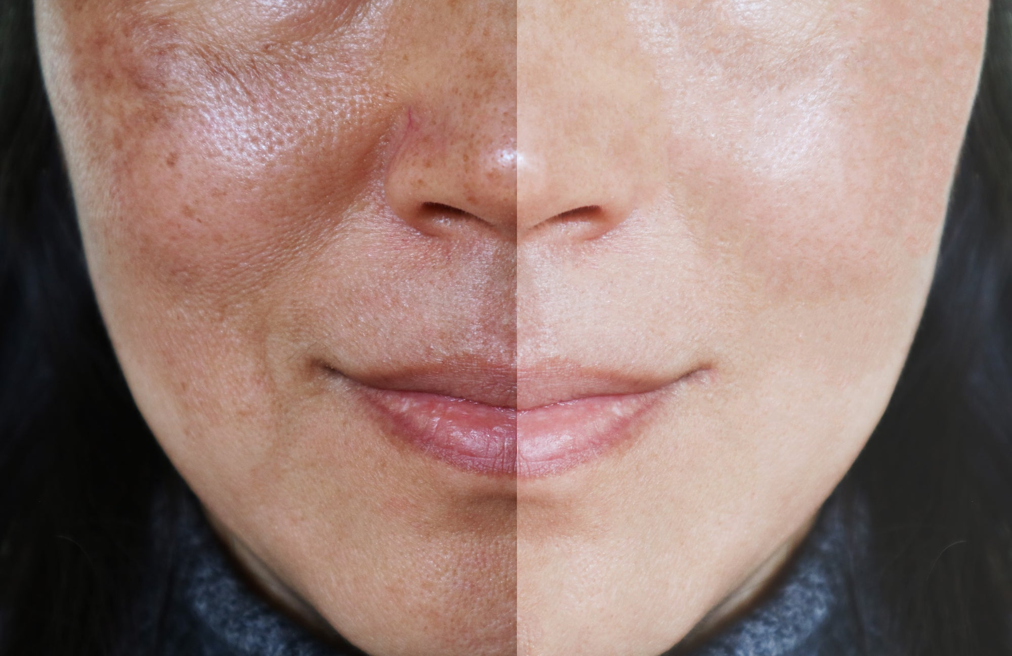 3 Ways to Effectively Lighten Age Spots