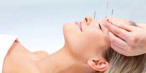 IVF Acupuncture