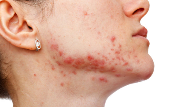 Treatment of Acne and other skin conditions